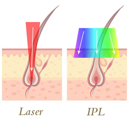 IPL versus Laser Hair Removal
