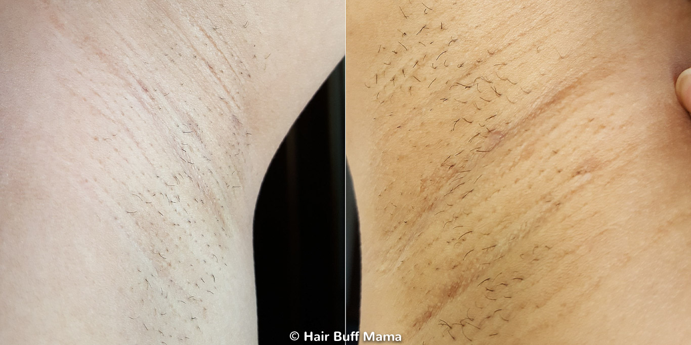 Remington iLight Before and After Photo (2nd Treatment)