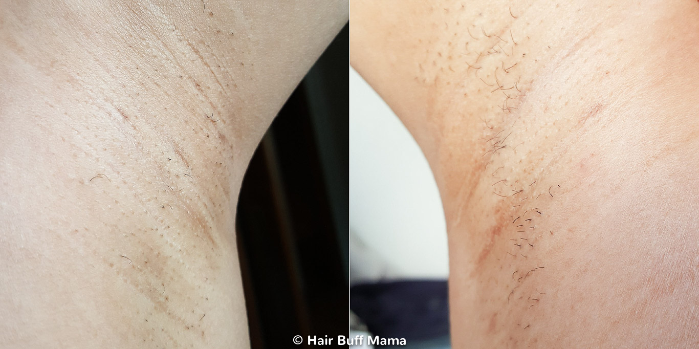 Remington iLight Before and After Photo (4th Treatment)