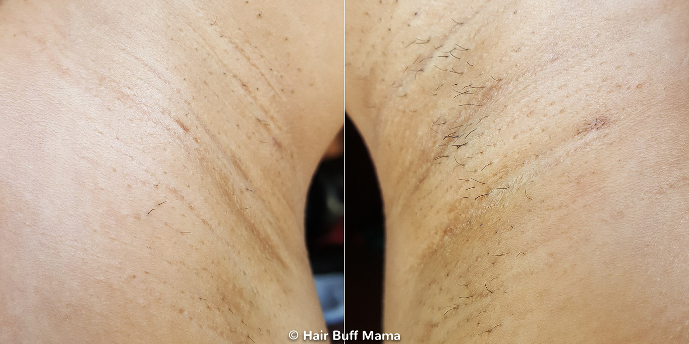 Remington iLight Before and After Photo (5th Treatment)